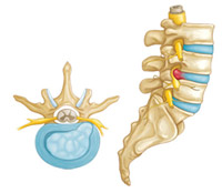A Herniated Disc (Side View and Cross-Section)