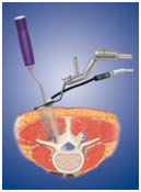 Minimally Invasive Lumbar Discectomy