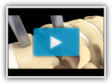 ANI BRYAN® Cervical Disc Surgical Technique Animation